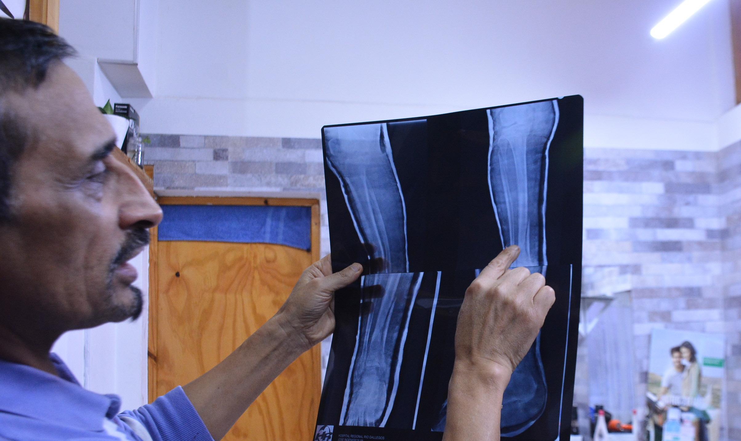 Jorge, su hermano, mostrándonos la placa que dio cuenta de la lesión. FOTO: JOSÉ SILVA