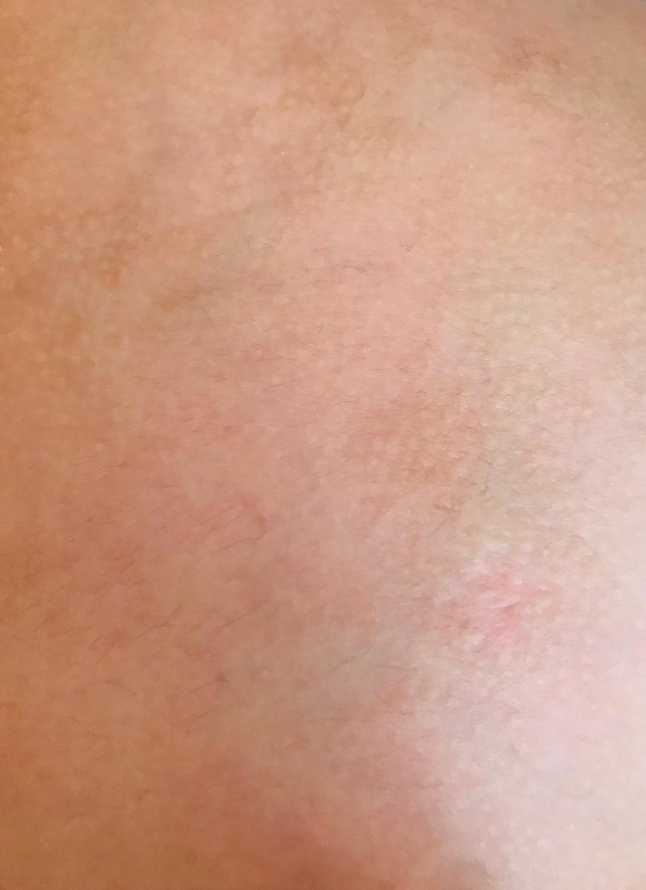 El hamartoma del tejido conectivo que descubrieron los papás de Tomás, sobre el que los médicos realizaron una biopsia.