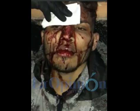 Al hermano del peluquero lo golpearon dos personas en la calle.