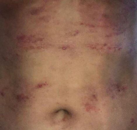 Zona del abdomen con costras y enrojecimiento, provocando picazón y ardor.