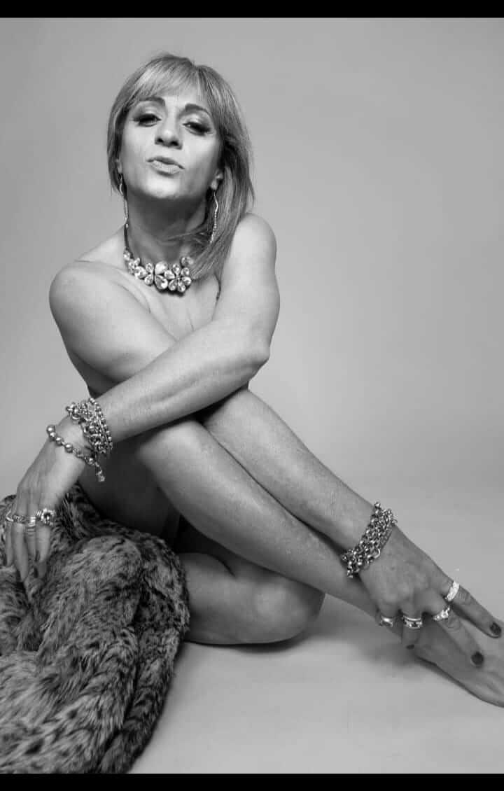 Angie Foti posa con pieles y bijouterie con el cuerpo desnudo y para el cual reclama asistencia médica por el daño de la silicona industrial.