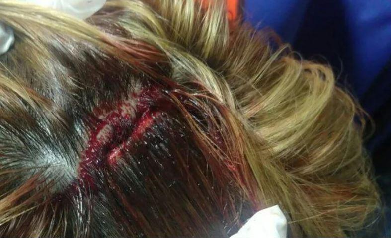 La mujer tenía un corte importante en el cuero cabelludo. FOTO: ADNSUR